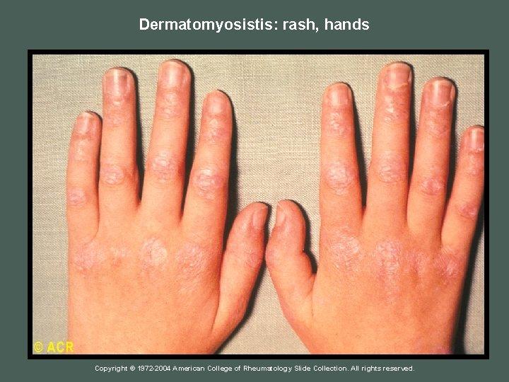 Dermatomyosistis: rash, hands Copyright © 1972 -2004 American College of Rheumatology Slide Collection. All