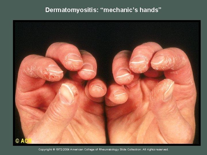 "Dermatomyositis: ""mechanic's hands"" Copyright © 1972 -2004 American College of Rheumatology Slide Collection. All"