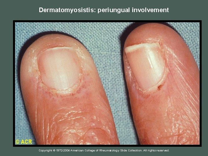Dermatomyosistis: periungual involvement Copyright © 1972 -2004 American College of Rheumatology Slide Collection. All