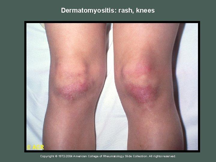 Dermatomyositis: rash, knees Copyright © 1972 -2004 American College of Rheumatology Slide Collection. All