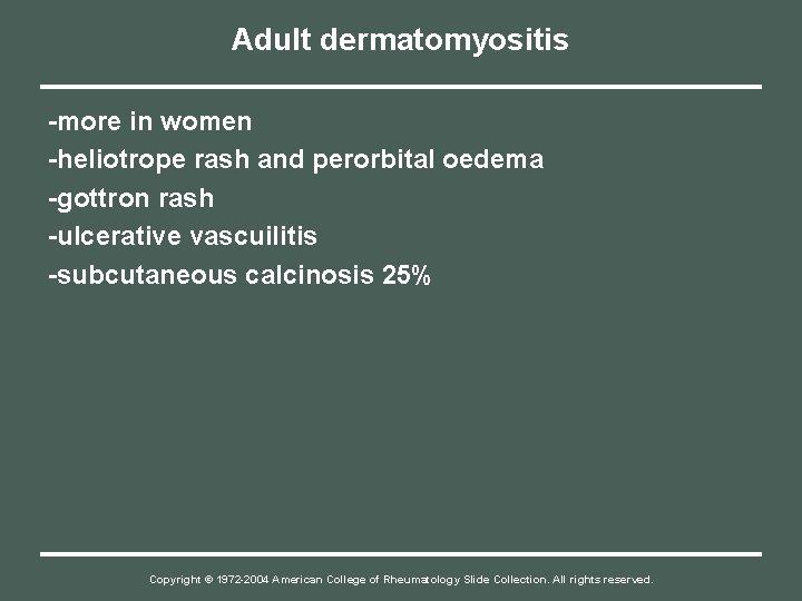 Adult dermatomyositis -more in women -heliotrope rash and perorbital oedema -gottron rash -ulcerative vascuilitis