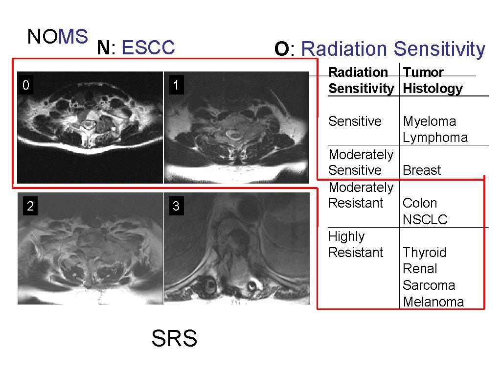 NOMS N: ESCC 0 2 1 3 SRS O: Radiation Sensitivity Radiation Tumor Sensitivity