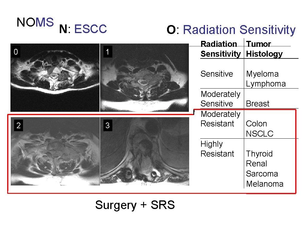 NOMS N: ESCC 0 2 O: Radiation Sensitivity 1 3 Surgery + SRS Radiation