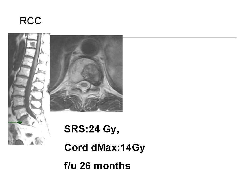 RCC SRS: 24 Gy, Cord d. Max: 14 Gy f/u 26 months Bilsky M,