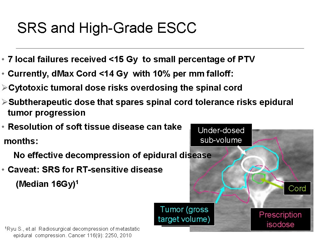 SRS and High-Grade ESCC • 7 local failures received <15 Gy to small percentage