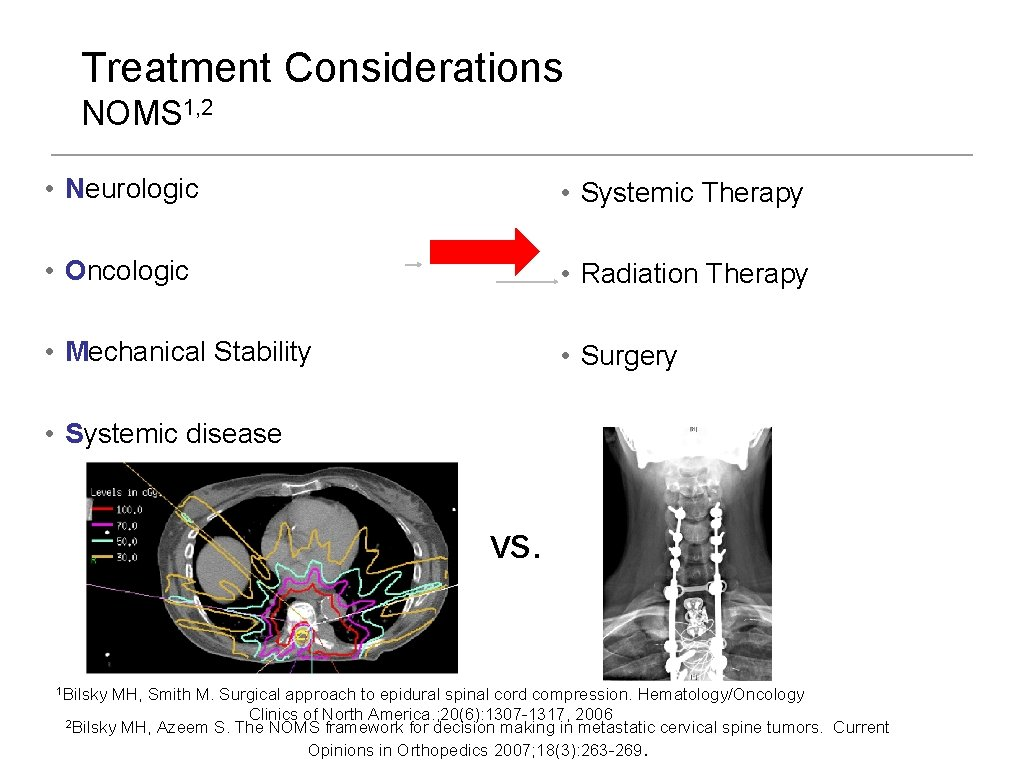 Treatment Considerations NOMS 1, 2 • Neurologic • Systemic Therapy • Oncologic • Radiation