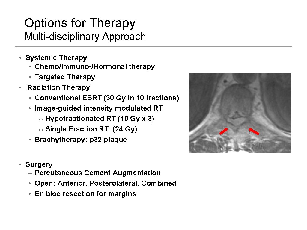Options for Therapy Multi-disciplinary Approach • Systemic Therapy • Chemo/Immuno-/Hormonal therapy • Targeted Therapy
