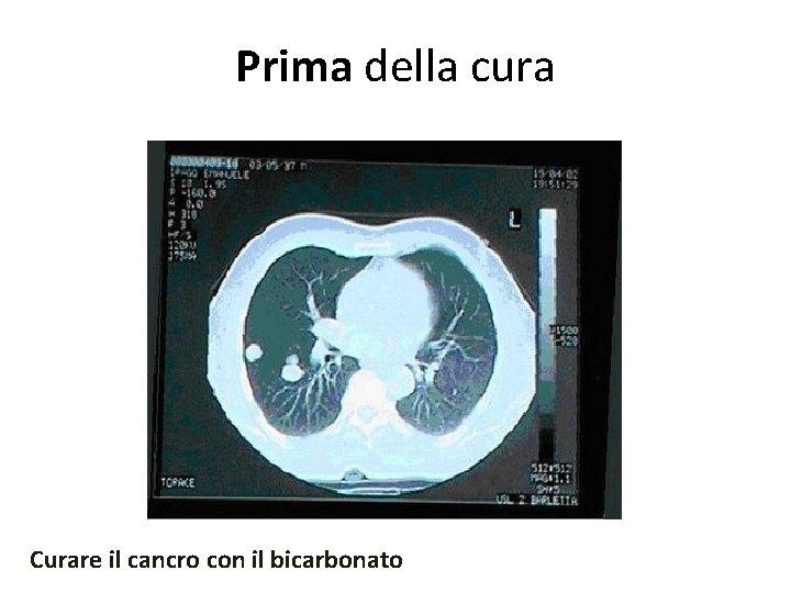 Prima della cura Curare il cancro con il bicarbonato
