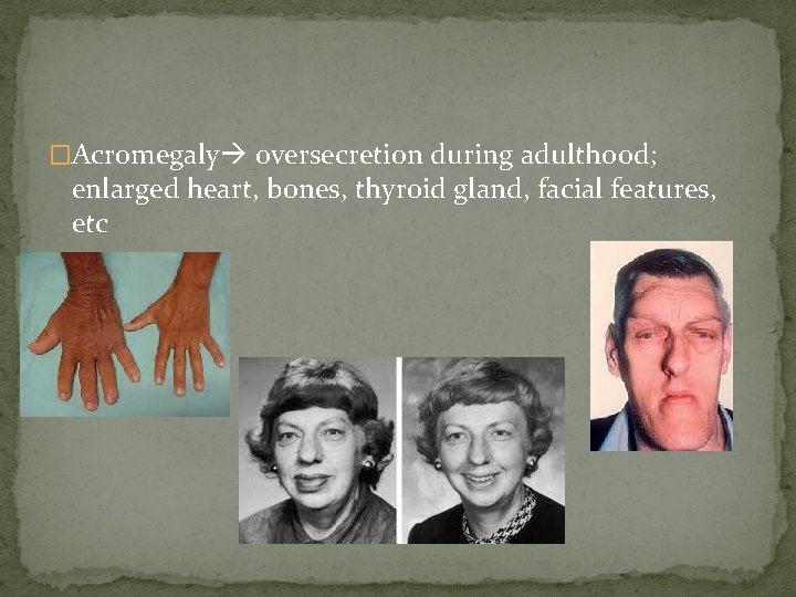 �Acromegaly oversecretion during adulthood; enlarged heart, bones, thyroid gland, facial features, etc