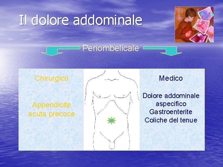 Il dolore addominale Periombelicale Chirurgico Medico Appendicite acuta precoce Dolore addominale aspecifico Gastroenterite Coliche