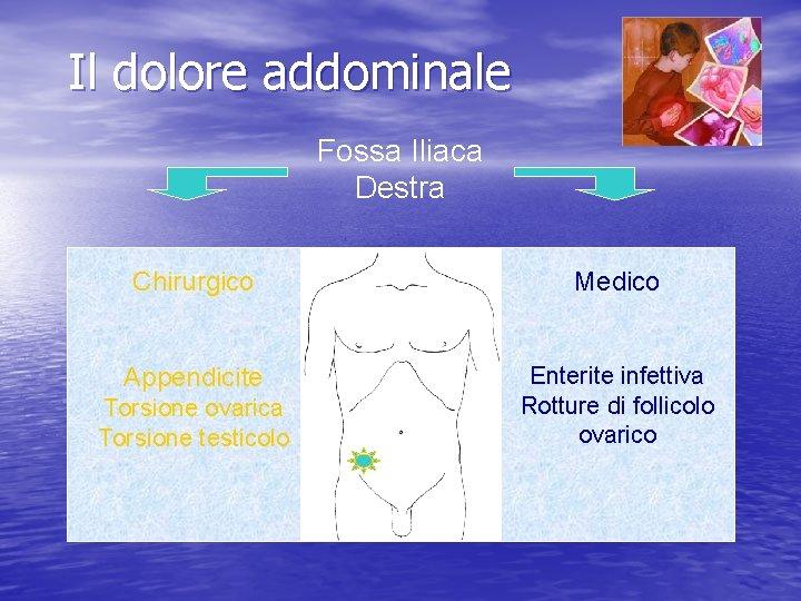 Il dolore addominale Fossa Iliaca Destra Chirurgico Medico Appendicite Enterite infettiva Rotture di follicolo
