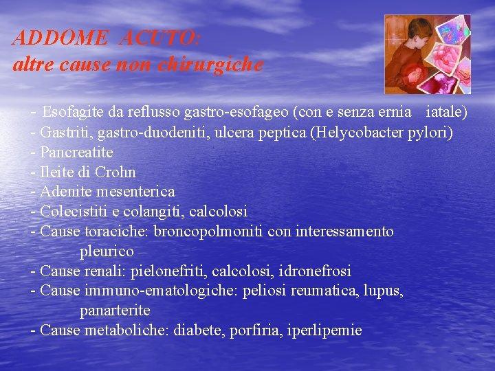 ADDOME ACUTO: altre cause non chirurgiche - Esofagite da reflusso gastro-esofageo (con e senza