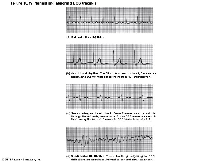 Figure 18. 19 Normal and abnormal ECG tracings. Normal sinus rhythm. Junctional rhythm. The