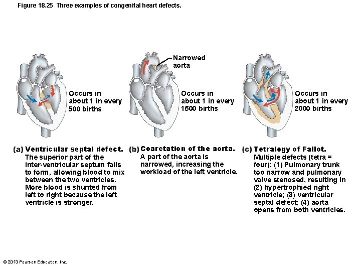 Figure 18. 25 Three examples of congenital heart defects. Narrowed aorta Occurs in about