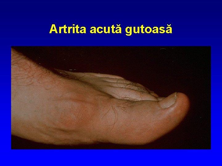 artrita gutoasă acută