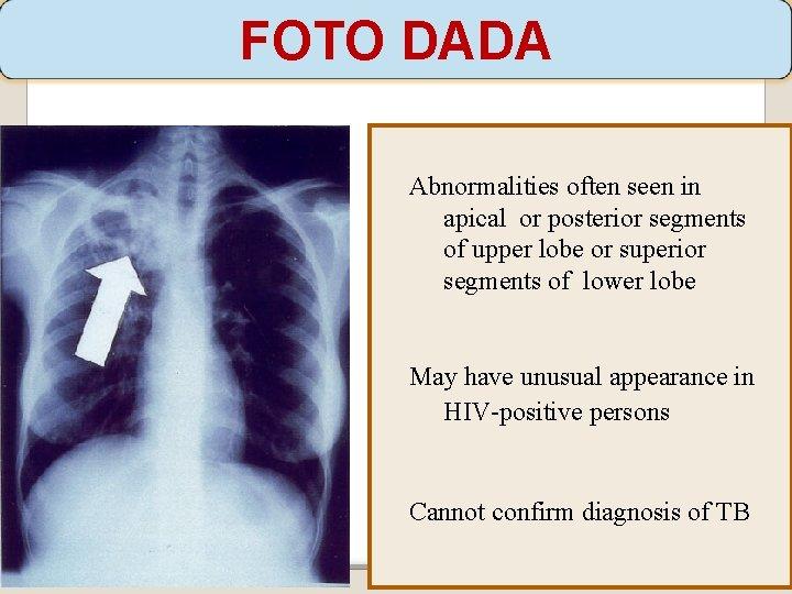 FOTO DADA Abnormalities often seen in apical or posterior segments of upper lobe or