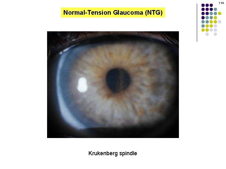 114 Normal-Tension Glaucoma (NTG) Krukenberg spindle