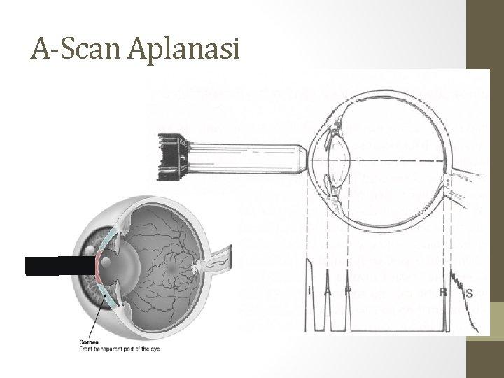 A-Scan Aplanasi