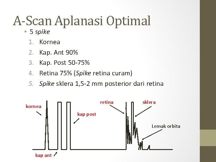 A-Scan Aplanasi Optimal • 5 spike 1. Kornea 2. Kap. Ant 90% 3. Kap.