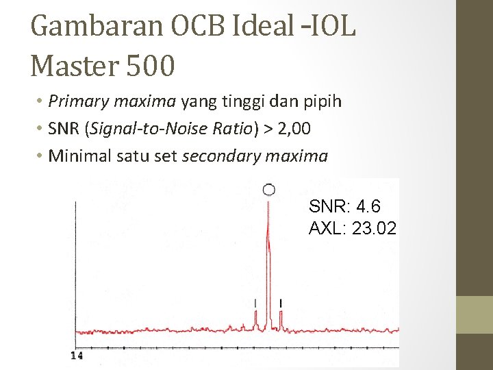 Gambaran OCB Ideal –IOL Master 500 • Primary maxima yang tinggi dan pipih •