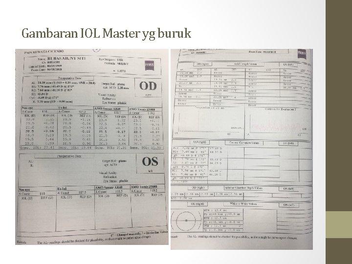Gambaran IOL Master yg buruk