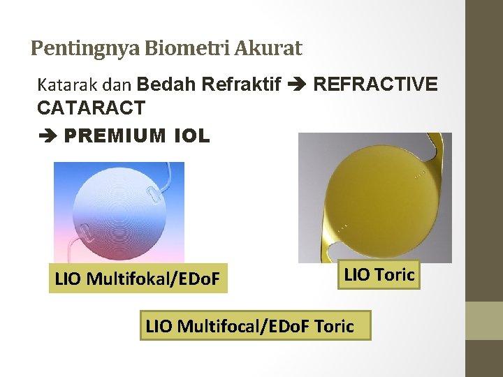 Pentingnya Biometri Akurat Katarak dan Bedah Refraktif REFRACTIVE CATARACT PREMIUM IOL LIO Multifokal/EDo. F