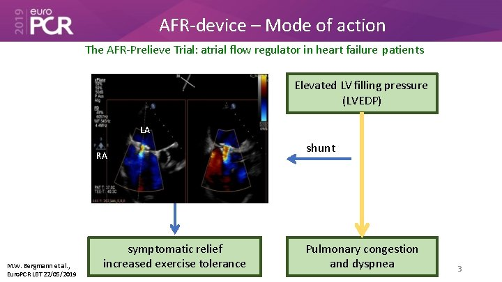 AFR-device – Mode of action The AFR-Prelieve Trial: atrial flow regulator in heart failure