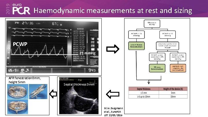 Haemodynamic measurements at rest and sizing PCWP 25 mm. Hg AFR fenestration 8 mm,