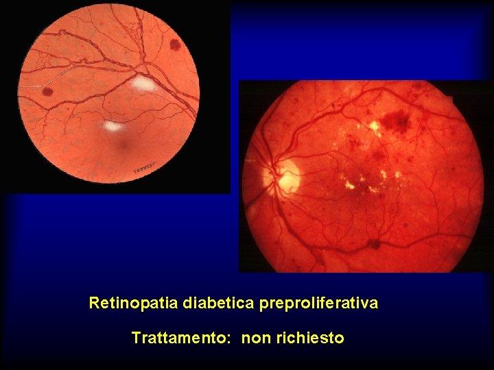 Retinopatia diabetica preproliferativa Trattamento: non richiesto