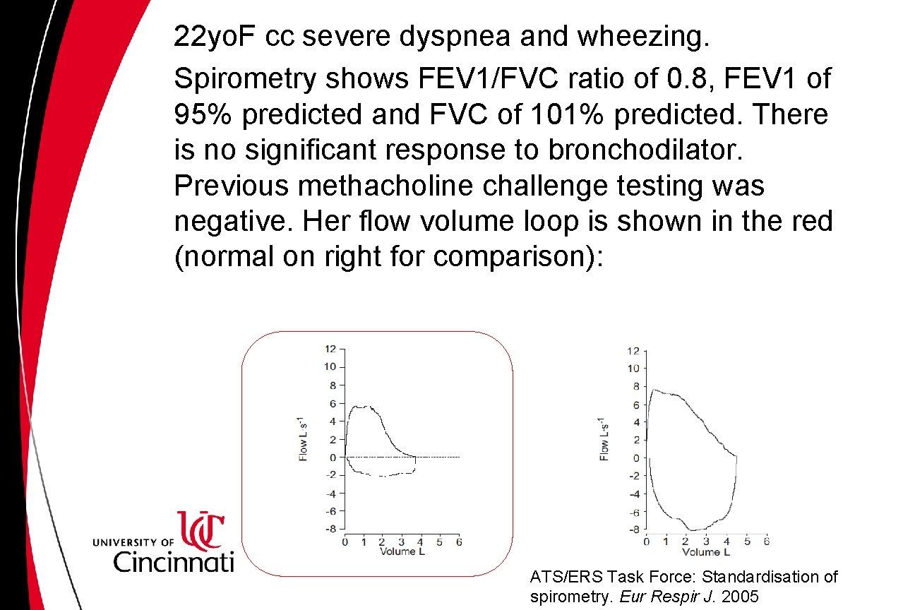 22 yo. F cc severe dyspnea and wheezing. Spirometry shows FEV 1/FVC ratio of