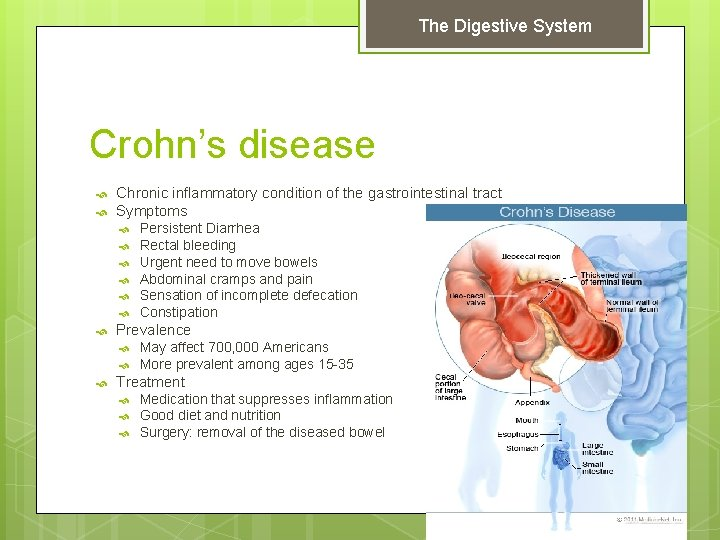 The Digestive System Crohn's disease Chronic inflammatory condition of the gastrointestinal tract Symptoms Prevalence