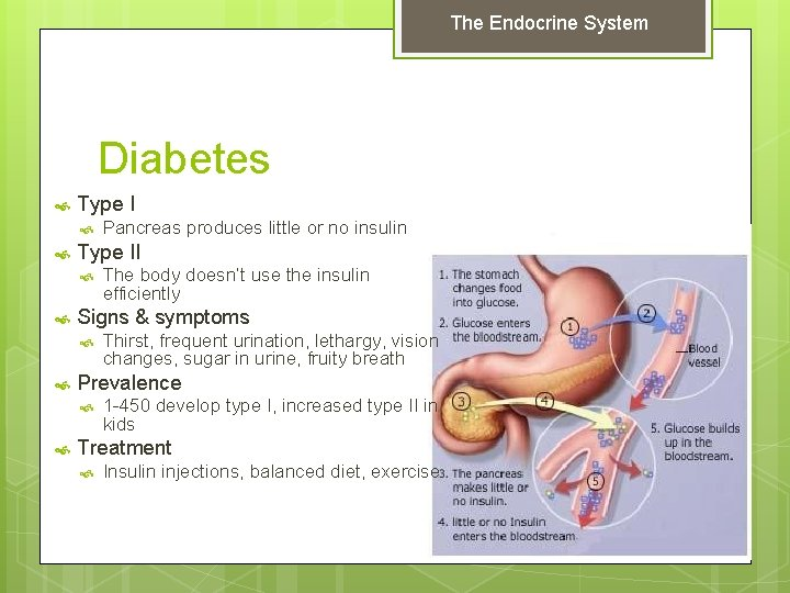 The Endocrine System Diabetes Type II Thirst, frequent urination, lethargy, vision changes, sugar in