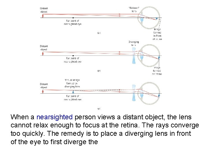When a nearsighted person views a distant object, the lens cannot relax enough to