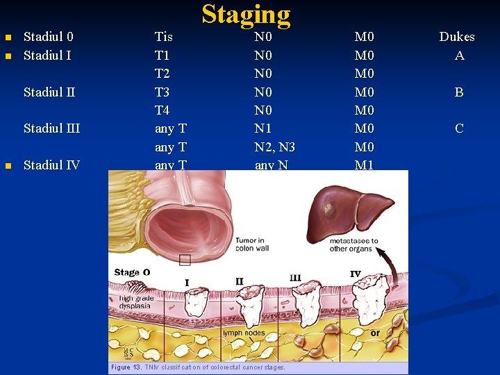 cancer gastric stadiul 1