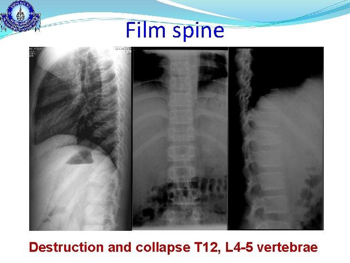Film spine Destruction and collapse T 12, L 4 -5 vertebrae