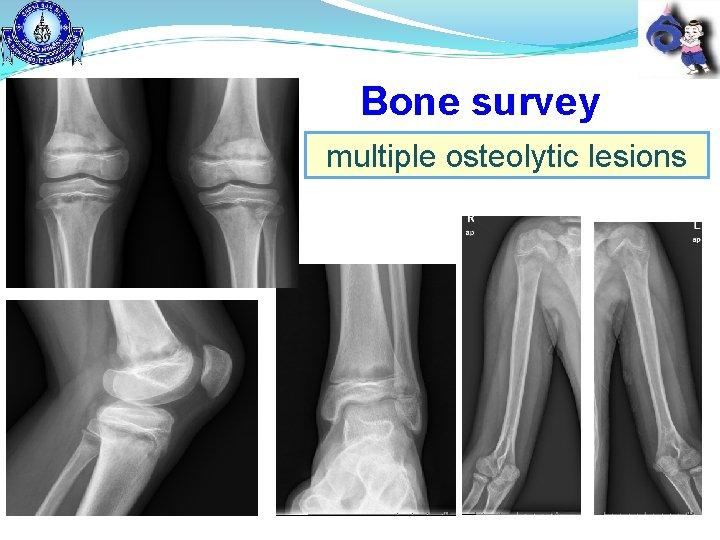Bone survey multiple osteolytic lesions