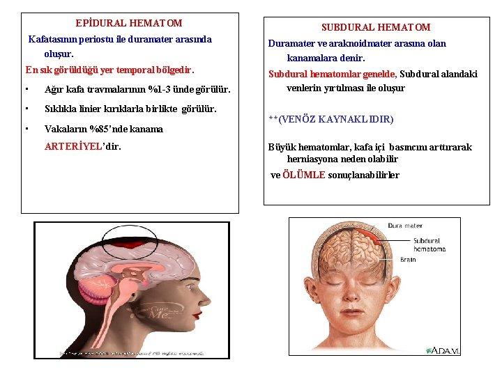 EPİDURAL HEMATOM SUBDURAL HEMATOM Kafatasının periostu ile duramater arasında oluşur. Duramater ve araknoidmater arasına