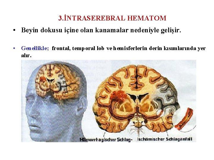 3. İNTRASEREBRAL HEMATOM • Beyin dokusu içine olan kanamalar nedeniyle gelişir. • Genellikle; frontal,