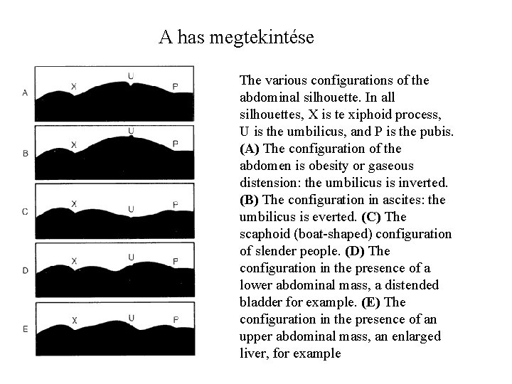 A has megtekintése The various configurations of the abdominal silhouette. In all silhouettes, X