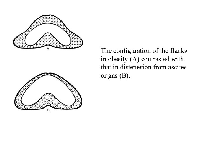 The configuration of the flanks in obesity (A) contrasted with that in distenesion from