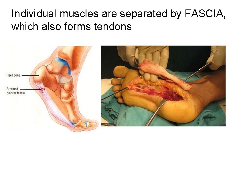 Individual muscles are separated by FASCIA, which also forms tendons