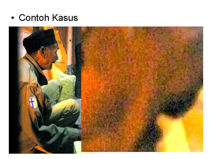 • Contoh Kasus