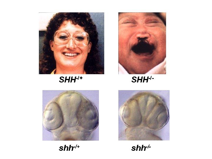 SHH-/+ SHH-/- shh-/+ shh-/-