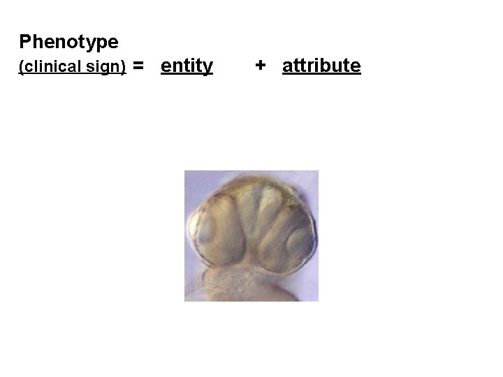 Phenotype (clinical sign) = entity + attribute
