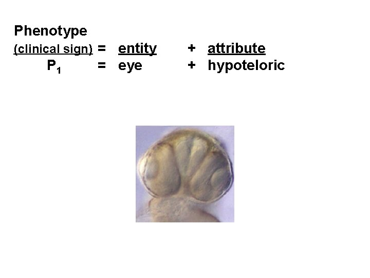 Phenotype (clinical sign) = entity P 1 = eye + attribute + hypoteloric