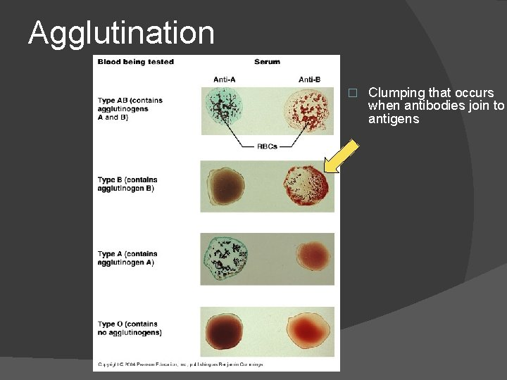 Agglutination � Clumping that occurs when antibodies join to antigens