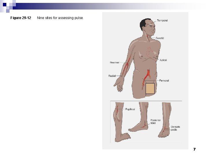 Figure 29 -12 Nine sites for assessing pulse. 7