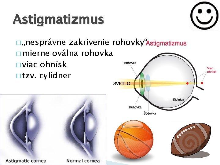 Myopia astigmatizmus csecsemőknél, Hyperopia myopia astigmatizmus