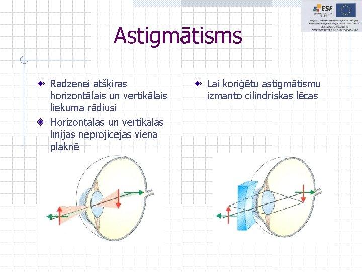 Astigmātisms Radzenei atšķiras horizontālais un vertikālais liekuma rādiusi Horizontālās un vertikālās līnijas neprojicējas vienā