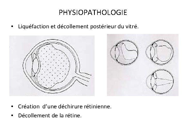 PHYSIOPATHOLOGIE • Liquéfaction et décollement postérieur du vitré. • Création d'une déchirure rétinienne. •